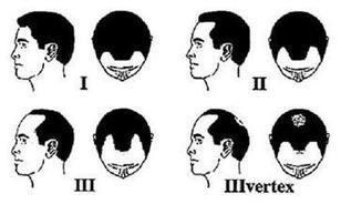 The Hair Loss Clinic: Laser Hair Loss Treatment For Men And Women | The Hair Loss Clinic | Scoop.it