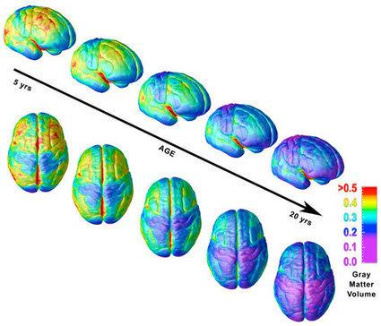 The Teen Brain   Harvard Magazine Sep-Oct 2008   Adolescent Brain Science   Scoop.it