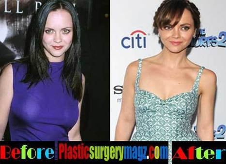 Christina Ricci Breast Size Has Changed Due to Plastic Surgery | Celebrity Plastic Surgery News | Scoop.it