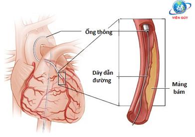 Bệnh tim mạch vành | Thông tin y khoa | Scoop.it