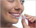 Best Invisalign & Orthodontics in Kanata   kanatadentistry.ca   Best Dentist in Kanata   Scoop.it