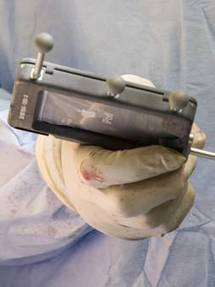 iPod Touch being used during surgery to improve accuracy | Medical Apps | Scoop.it