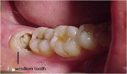 Wisdom Tooth Extraction Melbourne as an Emergency Dental Care | Wisdom Teeth Dentist | Scoop.it
