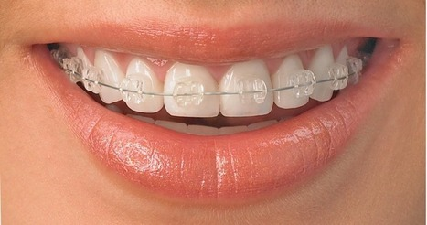 Braces: The Best Way to a Healthy Smile   Dental Care   Scoop.it