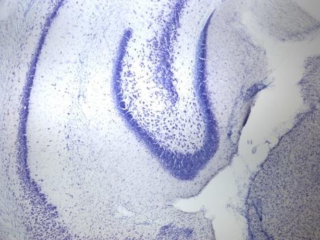 New Neurons Erase Memories | Neuroscience | Scoop.it