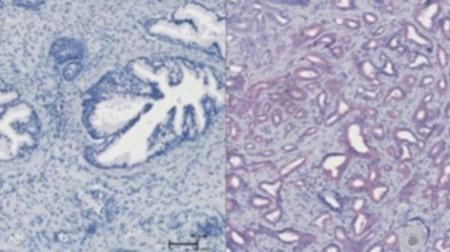 Targeting a single molecule may stop prostate cancer in its tracks | health | Scoop.it