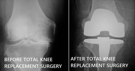 Knee arthritis – What to do ? - SGHS Super Speciality Hospital in Chandigarh | Eye Hospital | Scoop.it