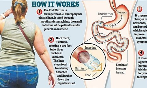 The no-surgery 'gastric band' that helps beat diabetes - Daily Mail | MRC research in the news | Scoop.it
