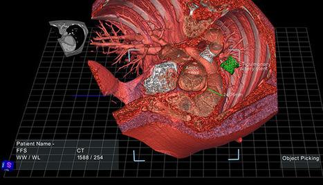 EchoPixel True3D Viewer Puts Patient Data on Interactive Stereoscopic Display   eSalud   Scoop.it