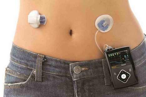 Luz verde para el uso del primer páncreas artificial automático del mundo | TICBEAT | eSalud Social Media | Scoop.it