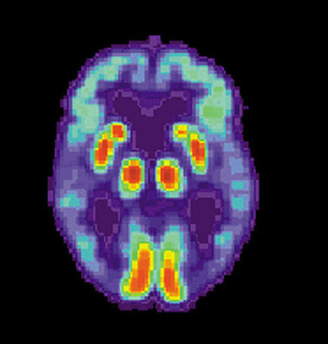 Young blood might help Alzheimer's patients - News - Bubblews | Bubblews by NB | Scoop.it