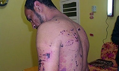 Bahrain accused of torturing, beating and raping prisoners with U.S. support   Human Rights and the Will to be free   Scoop.it