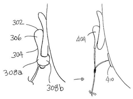 Wild Rumor of Apple EarPods with Biometric Sensors Has Roots in Apple's Research | Desarollo de productos de Apple | Scoop.it