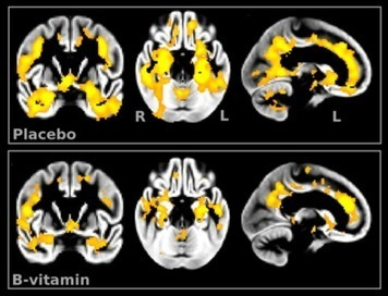 High dose B vitamins help prevent Alzheimer's, says researchers | Nutrition & Health | Scoop.it