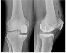 Partial vs Total Knee Replacement - CrediHealth Blog | Know About The Doctors & Hospitals in Delhi NCR | Scoop.it