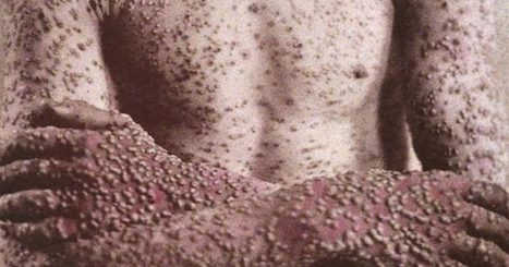 A Siberian Town Is Dealing With A Possible Smallpox Outbreak Thanks To Climate Change   IELTS, ESP, EAP and CALL   Scoop.it