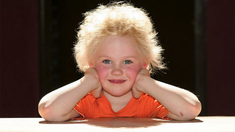 Bad hair day? 'Uncombable hair syndrome' traced to gene mutations | DNA and RNA Research | Scoop.it