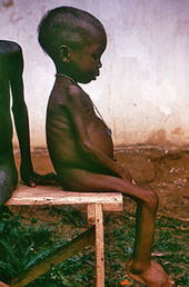 Do bacteria cause malnutrition? | Virology and Bioinformatics from Virology.ca | Scoop.it
