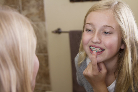 Orthodontists in Colorado Springs Explain Importance of Straightening Your Teeth PART 1 | Lets Talk about Dental Implants | Scoop.it
