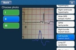 ECG Analysis App allows users to upload photos of an ECG for analysis | Digitized Health | Scoop.it