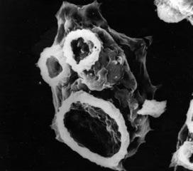 """Naegleria fowleri, la ameba """"come cerebros""""   microBIO   Scoop.it"""