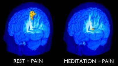 A Little Bit of Mindfulness Meditation Can Reduce a Lot of Pain | Mindful | Scoop.it