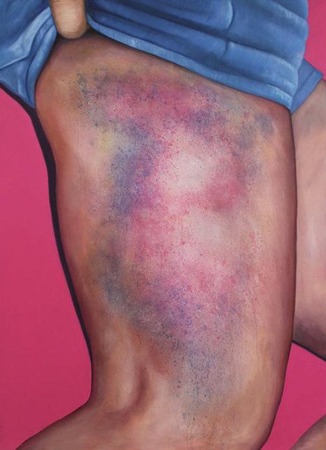 Roller Derby Kisses – Quand les bleus sur les cuisses deviennent des oeuvres d'art | SandyPims | Scoop.it