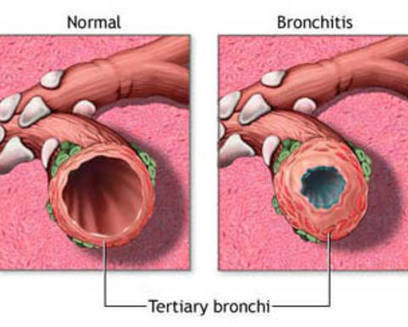 Definition, Causes and Treatment of Bronchitis | Professional chiropractors | Scoop.it