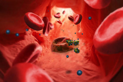 #Nanotechnology Against Malaria Parasites | Nanotechnology News | Scoop.it