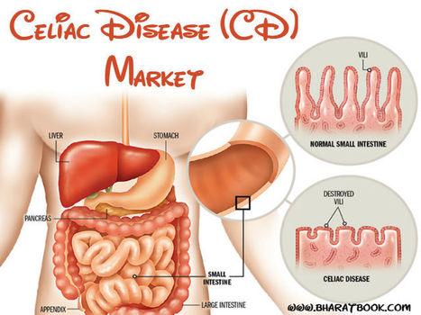 Celiac Disease (CD) Market - Bharat Book Bureau | Pharmaceuticals - Healthcare and Travel-tourism | Scoop.it