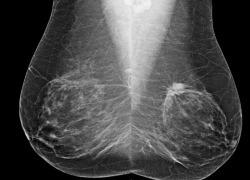 Mammography Screening Intervals May Affect Breast Cancer Prognosis | Breast Cancer News | Scoop.it