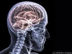 La thérapie cognitivo-comportementale change le cerveau | Cerveau intelligence | Scoop.it