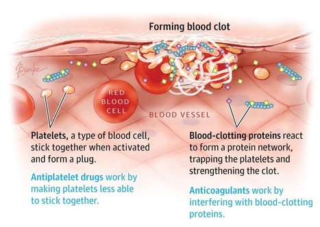 Blood Thinners: JAMA patient page | Heart and Vascular Health | Scoop.it