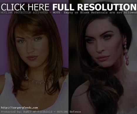 Megan Fox Plastic Surgery Before and After Pictures 2014-2015 | Plastic Surgery Before and After Photos | Scoop.it