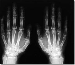 Tutto Slide: Immagini radiologiche e presentazioni   effective presentation   Scoop.it