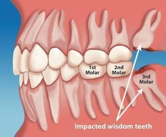 Wisdom Teeth Removal Cost in India | Best Dental Hospital Chanda Nagar | Scoop.it