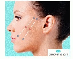 Lifting facciale senza bisturi | lifting senza chirurgia | Scoop.it