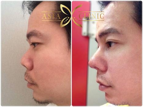 How to do Rhinoplasty / Nose Surgery   Rhinoplasty Thailand   Scoop.it