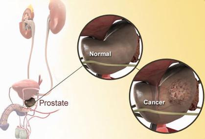 Bicalutamide Tablet USA , UK Supply | Calutide 50mg Price India | Prostate Cancer Medicines Online | Oncology Medicine Online | Scoop.it