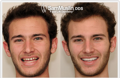 how to fix underbite without braces or surgery
