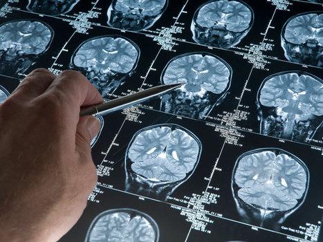 Le test SAGE efficace pour détecter précocement la maladie d'Alzheimer   Bien dans sa peau   Scoop.it