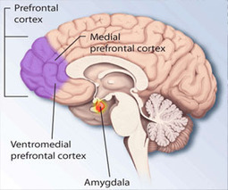 Scientists improve human self-control through electrical brain stimulation | PsyPost | Woodbury Reports Review of News and Opinion Relating To Struggling Teens | Scoop.it