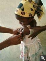 La Caixa destina un millón de euros a la vacunación infantil en países en vías de desarrollo - Super Salud | La poliomielitis | Scoop.it