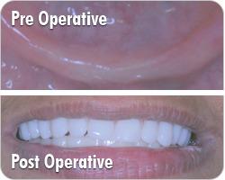 Full Mouth Rehabilitation in Mumbai – Implant Master India | Health | Scoop.it