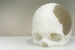 Patient Receives 3D Printed Implant To Replace 75 Percent Of Skull | Disruptivity | Scoop.it