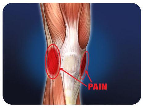 Knee Ligament Injury Healing TimeAshutosh Hospital | Ashutosh Orthopaedic Hospital | Scoop.it