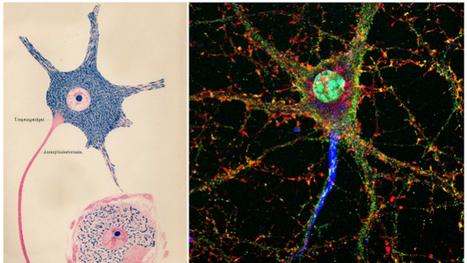 Tras la pista del autismo en el cerebro del mono | Educacion, ecologia y TIC | Scoop.it