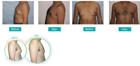 Male Breast Reduction Clinic in Kolkata, India   My Collections   Scoop.it