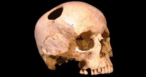 Team Recreates Bronze Age Trepanation Step-by-Step | Archaeology & Archaeological News | Scoop.it