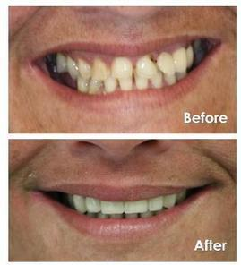 Affordable Treatment for Cracked Tooth in Bangalore | Cosmetic Dentistry in Bangalore ,India | Scoop.it
